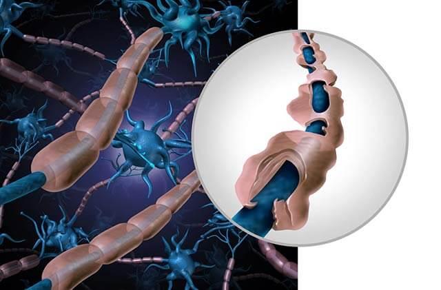 multipla-skleroza-lecenje-consulta.jpg