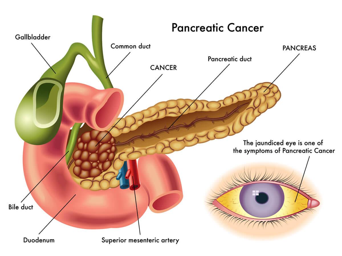 rak-pankreasa.jpg