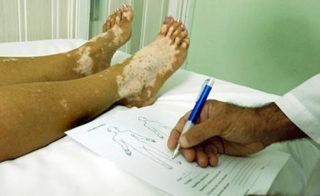 Vitiligo i Psorijaza